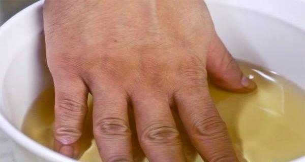 Bolesti drobných kloubů ruky